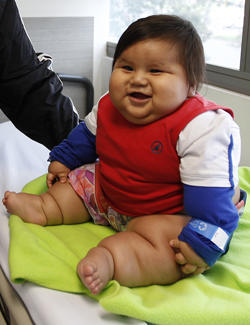 8 month old compulsive eater weighs more than 44 pounds cbs news