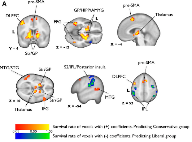 fmri-disgust.png