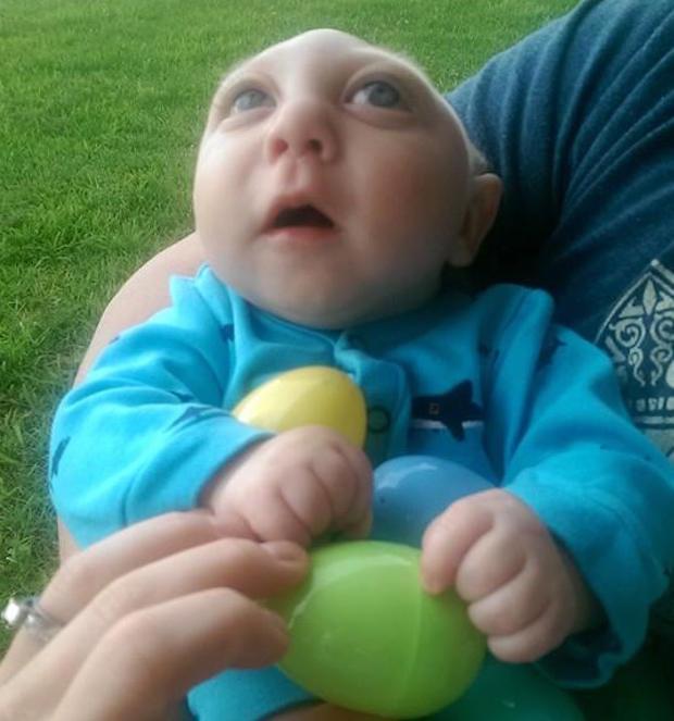 Baby born missing most of his brain celebrates milestones ...