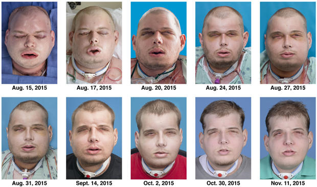 face-transplant-recovery-copy.jpg