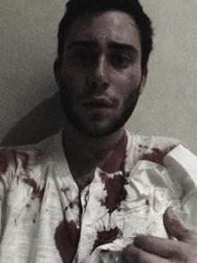 Jake Nolan bloody selfie