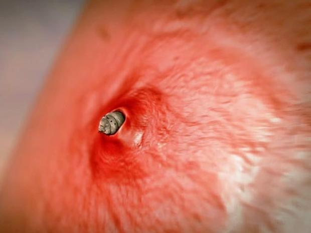 Botfly 10 most terrifying parasites ever pictures cbs news