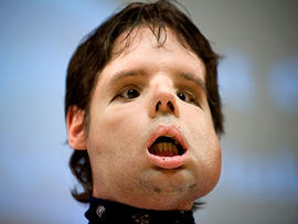 Oscar, a man who underwent a full-face transplant in April, poses for the photographers as he appears in public for the first time in a news conference at the Vall d'Hebron Hospital in Barcelona, Spain.