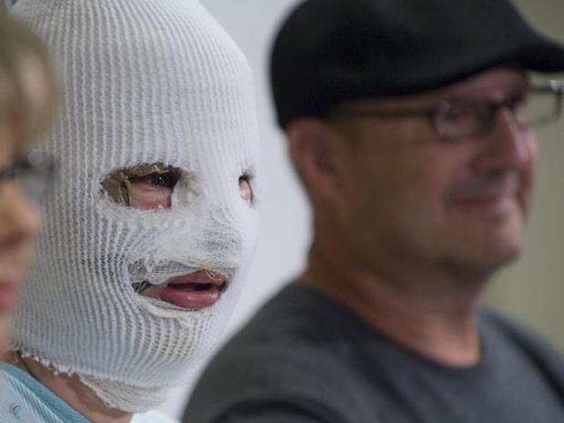 Bethany Storro: Vancouver Acid Attack Victim
