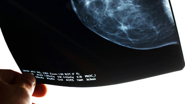 New study doesn't provide evidence for age-based mammography cessation