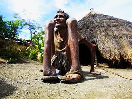 leprosy, indonesia, 4x3