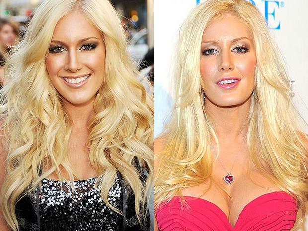 Heidi Montag Celebrity Plastic Surgery Disasters