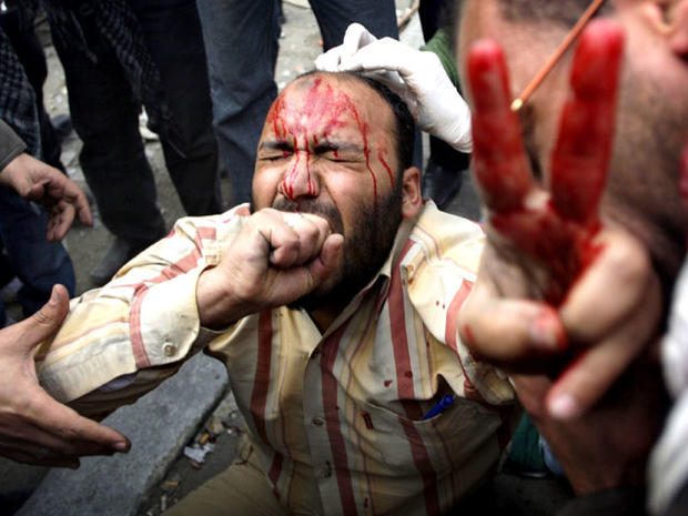 Wounded anti-government protester in Cairo
