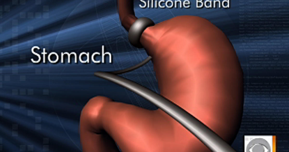 how to get lap band surgery approved