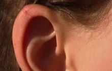 Elf ear plastic surgery