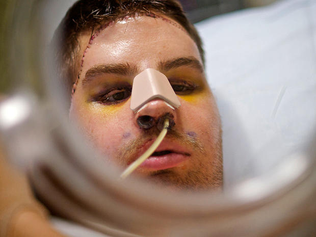 Mitch Hunter's amazing new face: Transplant patient leaves hospital
