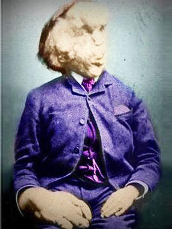 Proteus syndrome: The Elephant Man and beyond