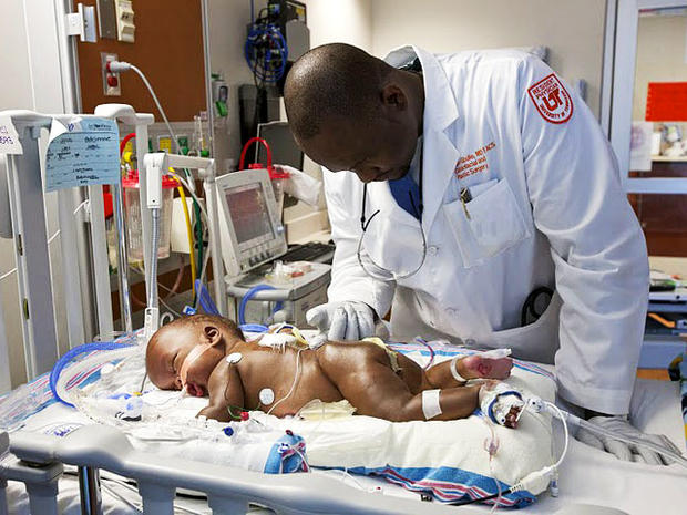 Medical miracle? Conjoined twins separated in Memphis
