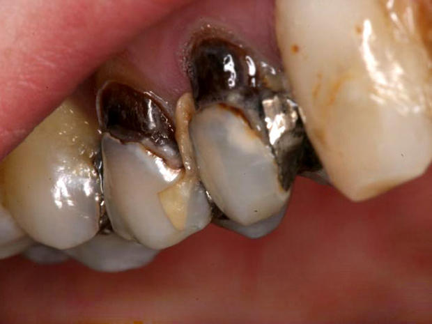 Meth Mouth Inside Look At Icky Problem 15 Graphic Images