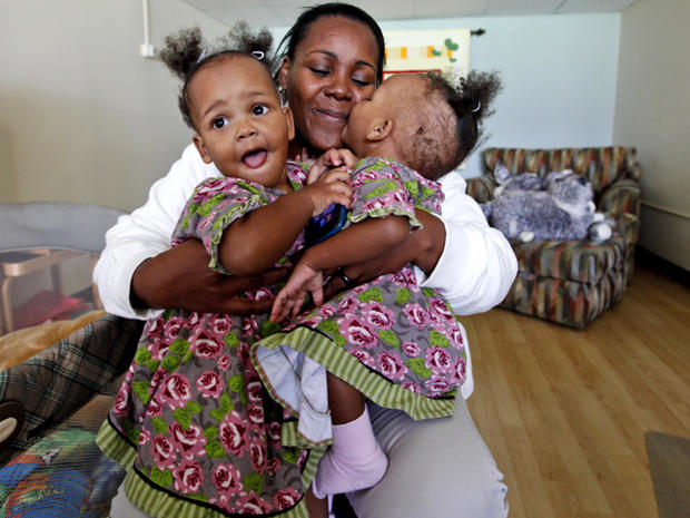 Conjoined twins Maria & Teresa Tapia: Before and after