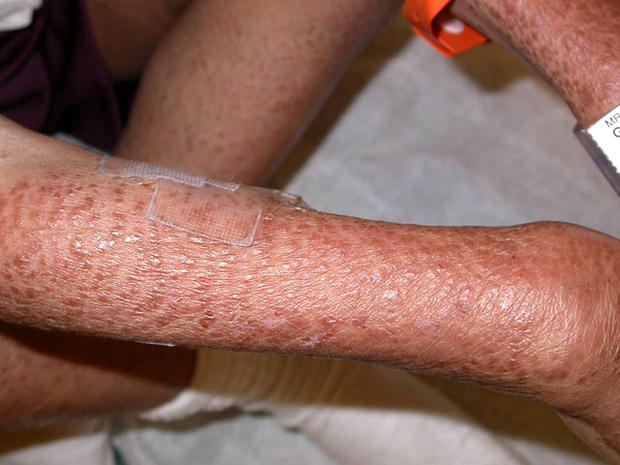 9 uncommon skin conditions