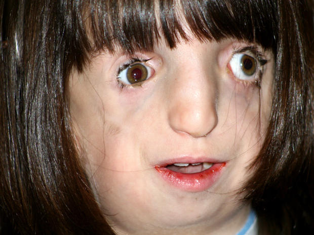 Clara's journey: 9-year-old with deformed face navigates the world