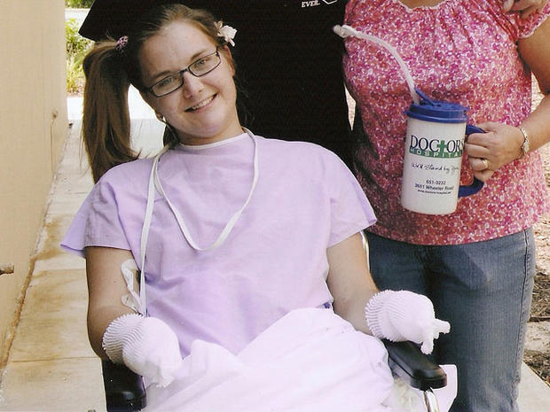Ga. student's amazing recovery from flesh-eating infection