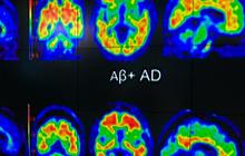 Experimental drug may slow Alzheimer's