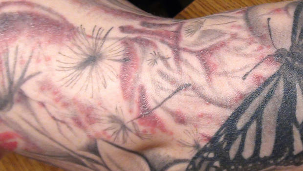 Itchy Or Py Tattoos And How To Treat Them Tattoo Rash