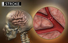 Study: More young adults suffering strokes