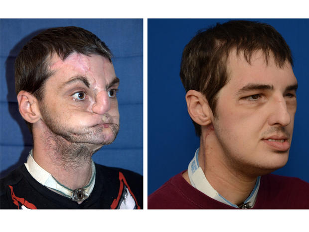 Face transplant patient's return to normal life