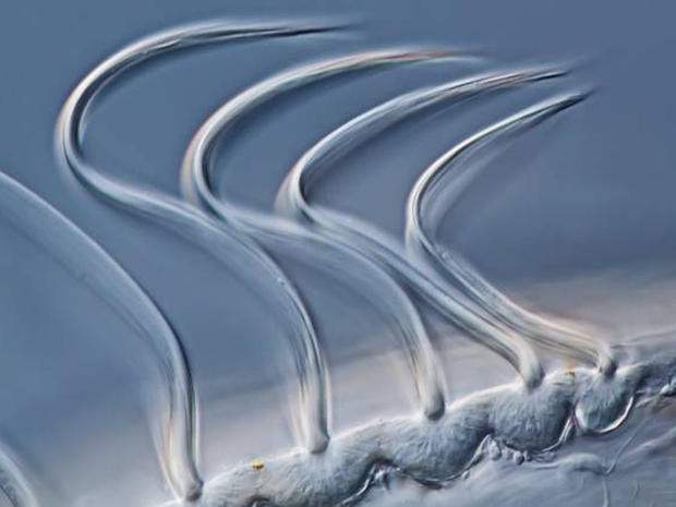 Microscopic beauty: Prize-winning photos
