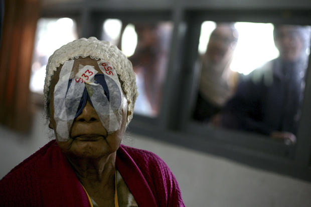Doctors Healing Blind In Indonesia Photo 4 Pictures
