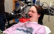 Robot arm controlled by brain of quadriplegic woman
