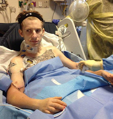 Quadruple amputee vet gets double arm transplant