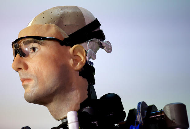 The $1 million bionic man