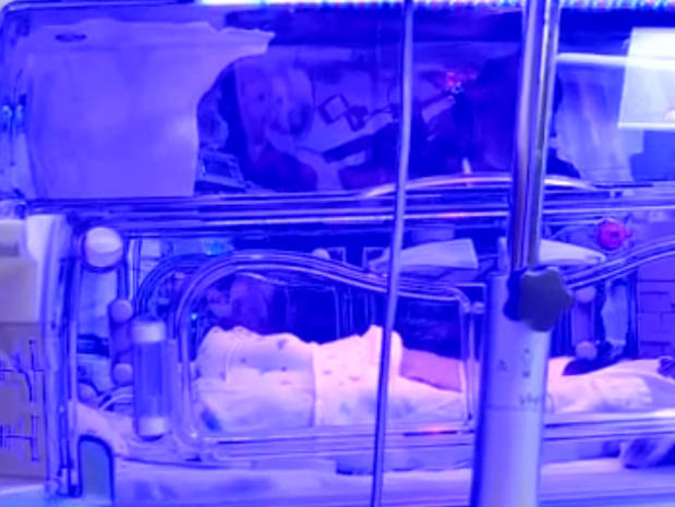 Texas mother's sets of identical twins