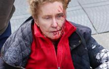 Leaked FBI photos show Boston bomb evidence