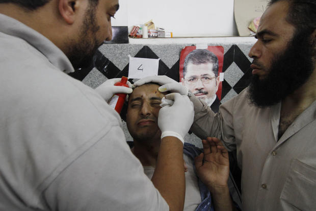 A wounded supporter of Egypt's ousted President Mohamed Morsi receives treatment at a local hospital in Cairo