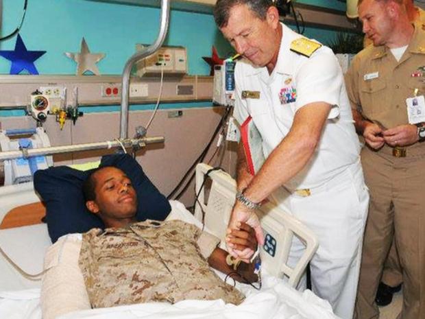 当他在阿富汗巡逻时,Angelo Anderson的右臂和右腿被打碎了。