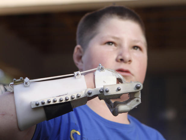 """3D printed """"Robohands"""" made in South Africa"""