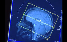 Millions spent on unnecessary brain scans