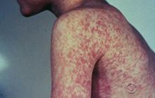 Measles is making a comeback in U.S.