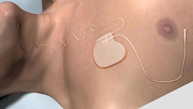 Implantable device to control sleep apnea wins fda approval cbs news