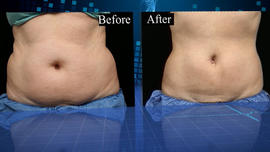 ctm0522coolsculpting640x360.jpg