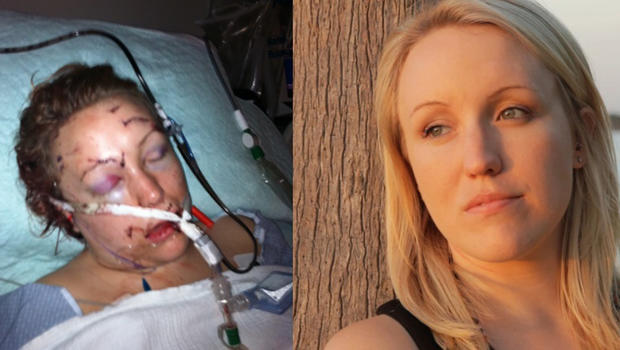 Melissa Dohme's brutal attack and incredible recovery
