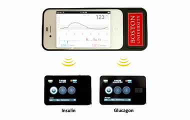Diabetes breakthrough? Bionic pancreas monitors sugar, triggers doses