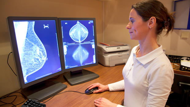 Study finds misperceptions about impact of double mastectomy