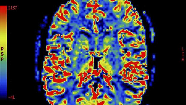 Ptsd Symptoms Light Up Specific Parts Of Brain Cbs News