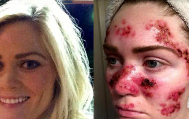 Woman posts skin cancer selfie as warning to others