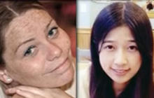 Boston Marathon bombing victims