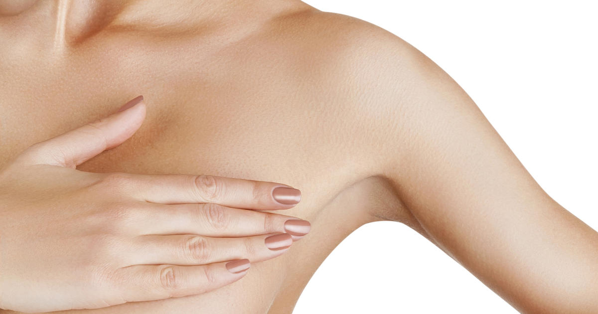 Inflammatory Breast Cancer Symptoms, Diagnosis, and