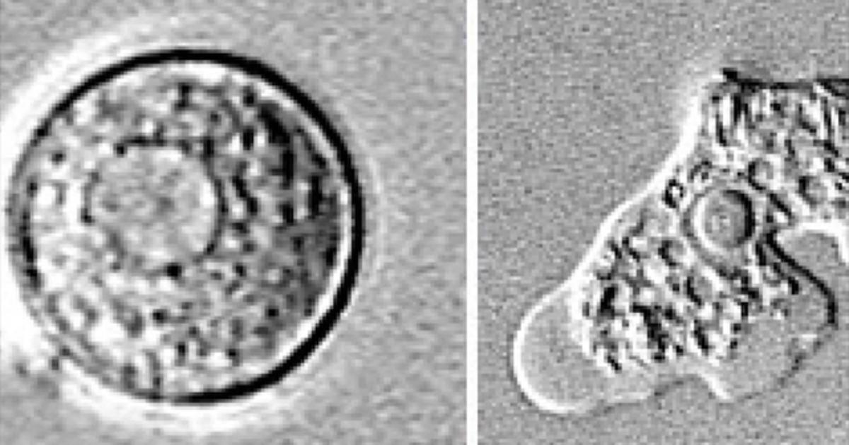 anti brain eating amoeba drug As zachary reyna struggles to combat a brain-eating  brain-eating warning issued in florida over amoeba  positively to an experimental anti-amoeba drug.