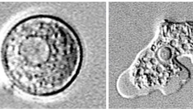 What You Need To Know About The Brain Eating Amoeba Cbs News