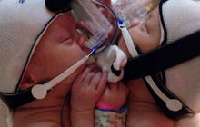 Texas conjoined twins separated successfully